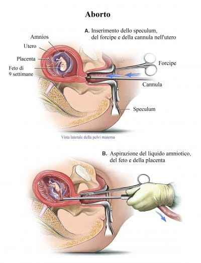 Aborto,aspirazione,forcipe,feto,dilatatore