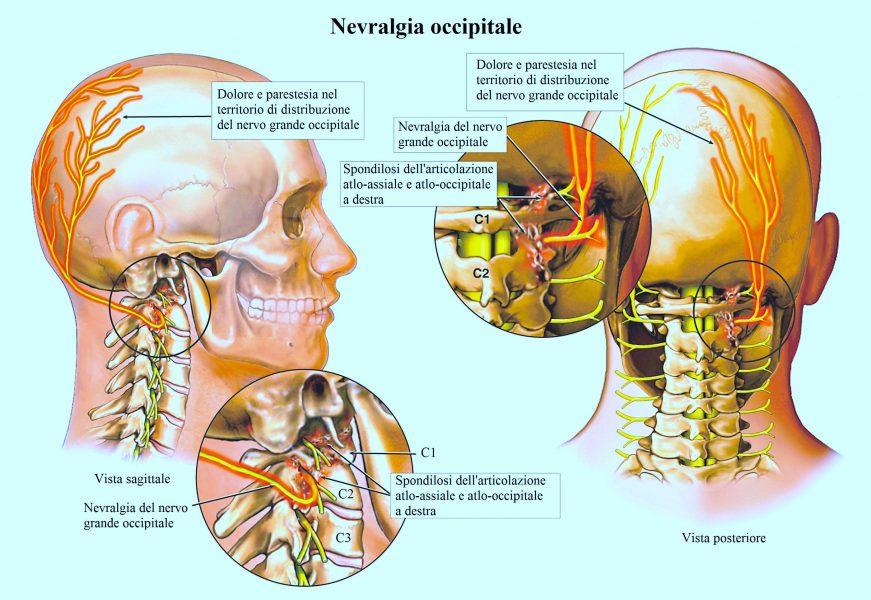 Artrosi cervicale,nuca,testa,occipite