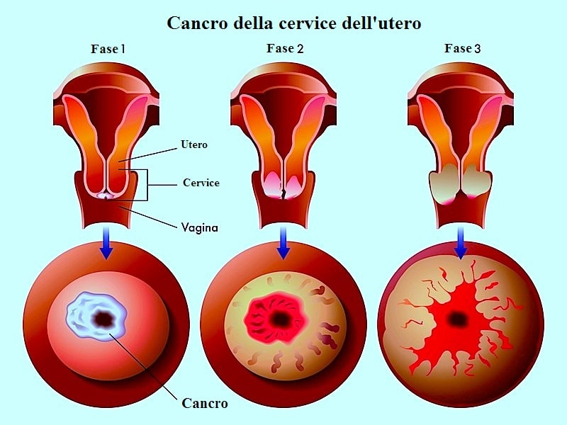 Cancro al collo dell'utero