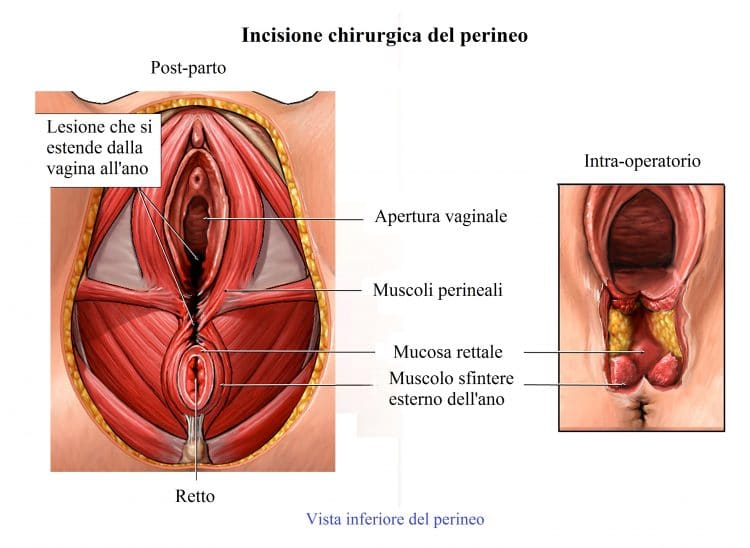 Episiotomia,lacerazione vaginale,vulva,parto,cicatrice
