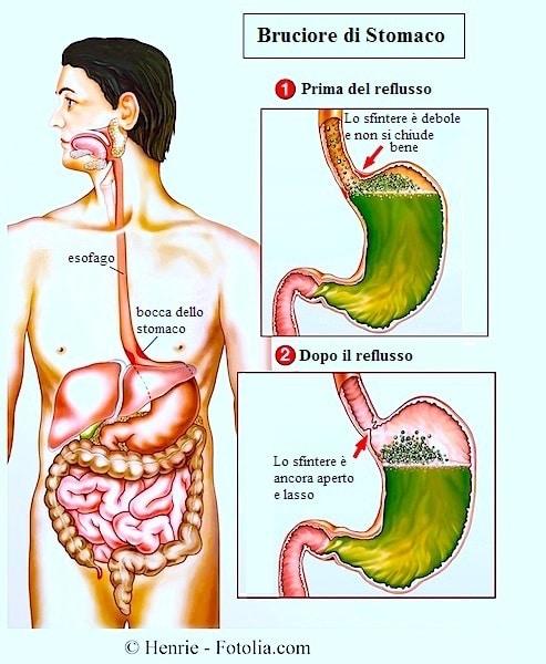 Esofagite da reflusso o eosinofila