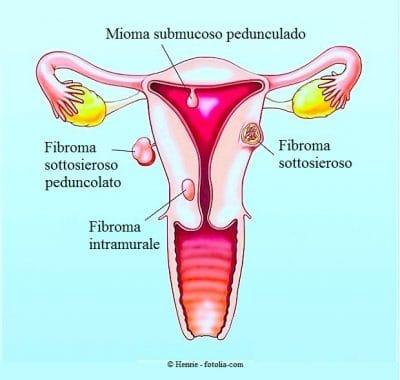 Fibrioma uterino,mioma