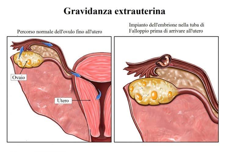 Gravidanza ectopica,extrauterina,tube di falloppio
