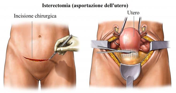 Isterectomia,asportazione uterina,intervento chirurgico