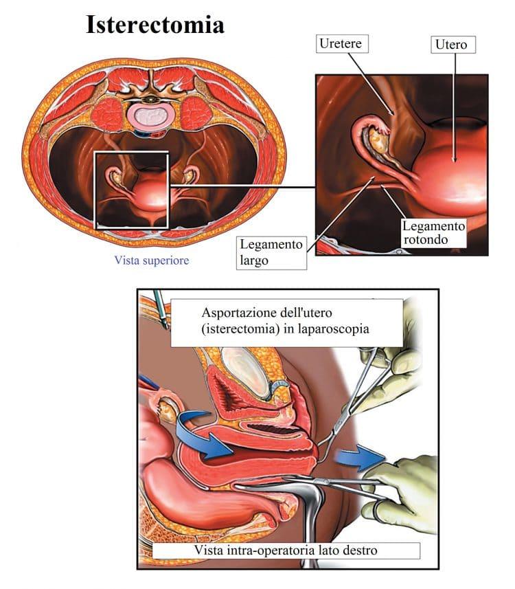 Isterectomia,totale,parziale,intervento chirurgico,utero