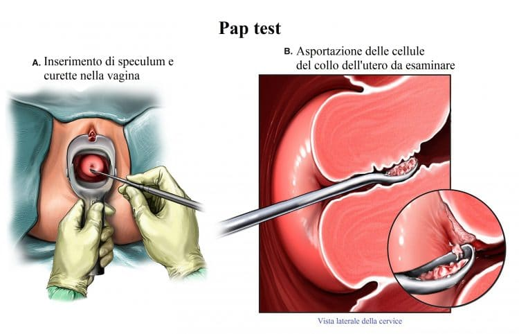 Pap test,collo dell'utero
