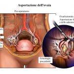 Rimozione dell'ovaio,intervento chirurgico