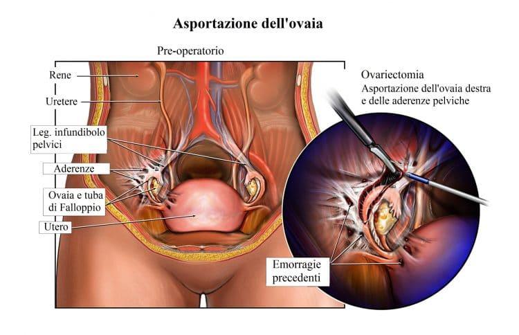 Rimozione dell'ovaia,intervento chirurgico