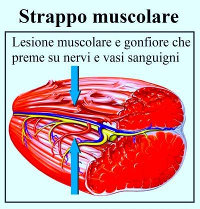 strappo muscolare,lesione