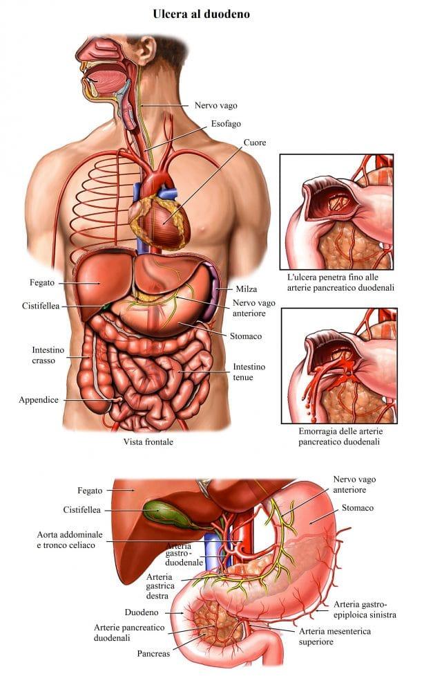 Ulcera duodenale,gastrite,bruciore di stomaco