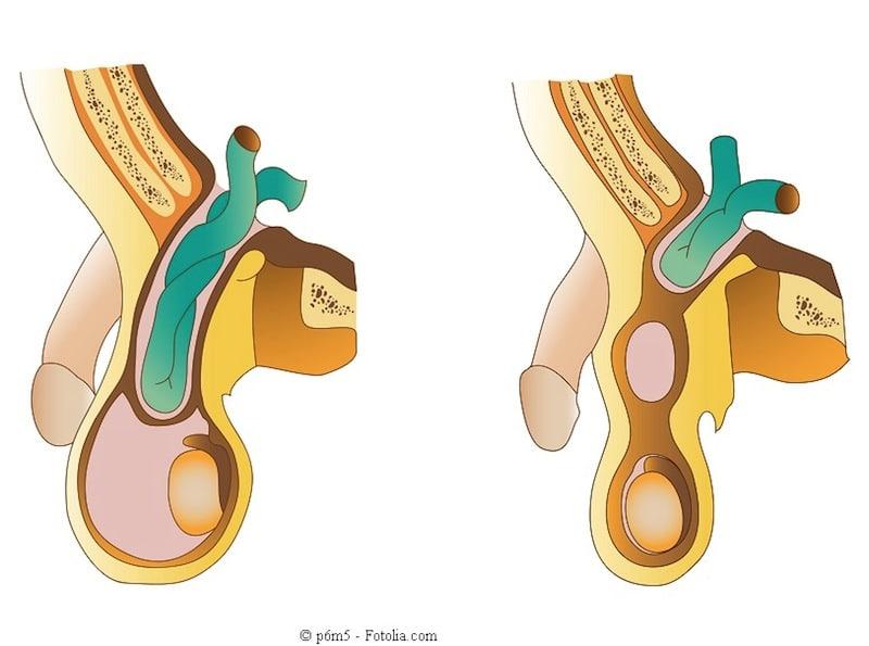 Gli unguenti varicosity più efficaci