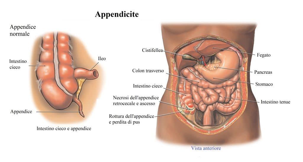 Appendicite,perforazione,peritonite,infezione