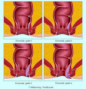 Emorroidi,grado,esterne,interne,diagnosi
