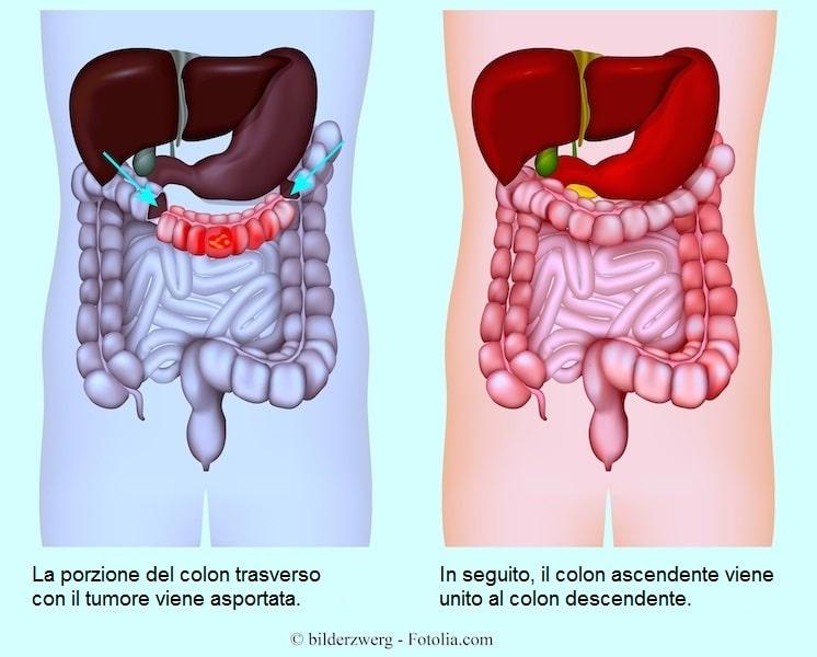 Intervento chirurgico,tumore al colon,resezione