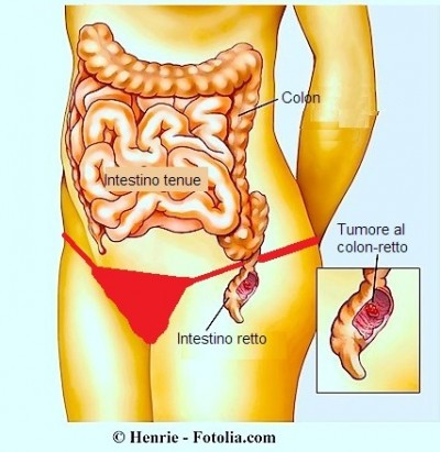 Tumore al colon,blocco intestinale