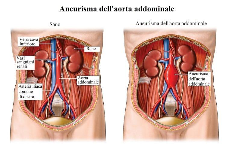 Aneurisma,aorta addominale,arteria