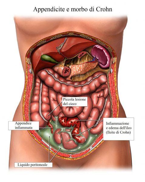 Morbo di Crohn,appendicite,peritonite
