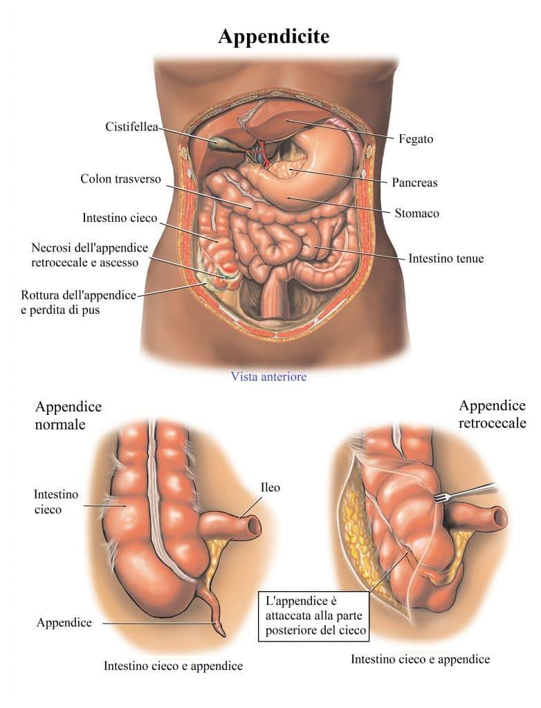Appendicite retrocecale,infezione,ascesso