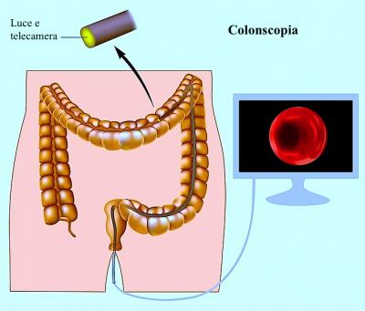 Colonscopia preparazione del colon