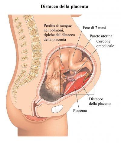 Distacco placentare,gravidanza,utero