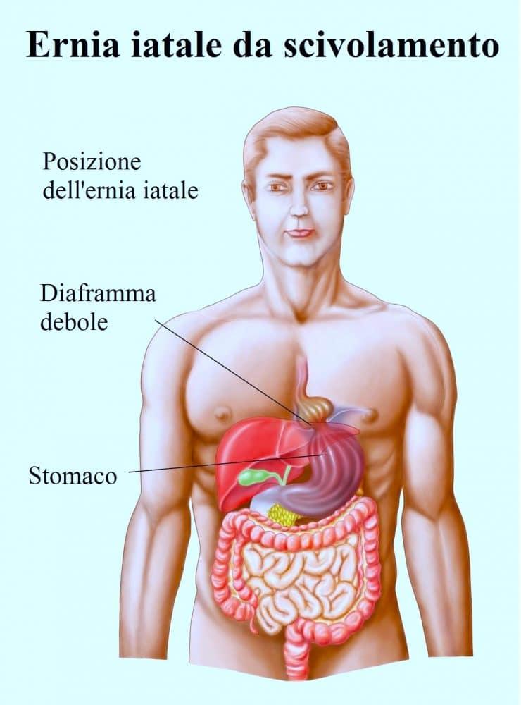Ernia iatale,stomaco