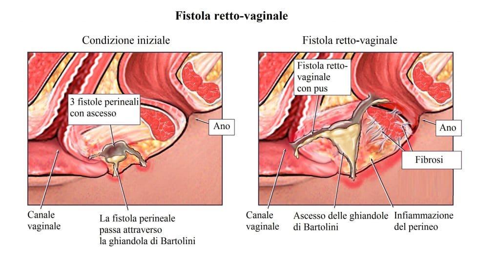 Fistola perianale,retto,vagina,ascesso