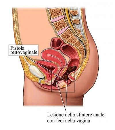 fistola,retto vaginale,canale,ano