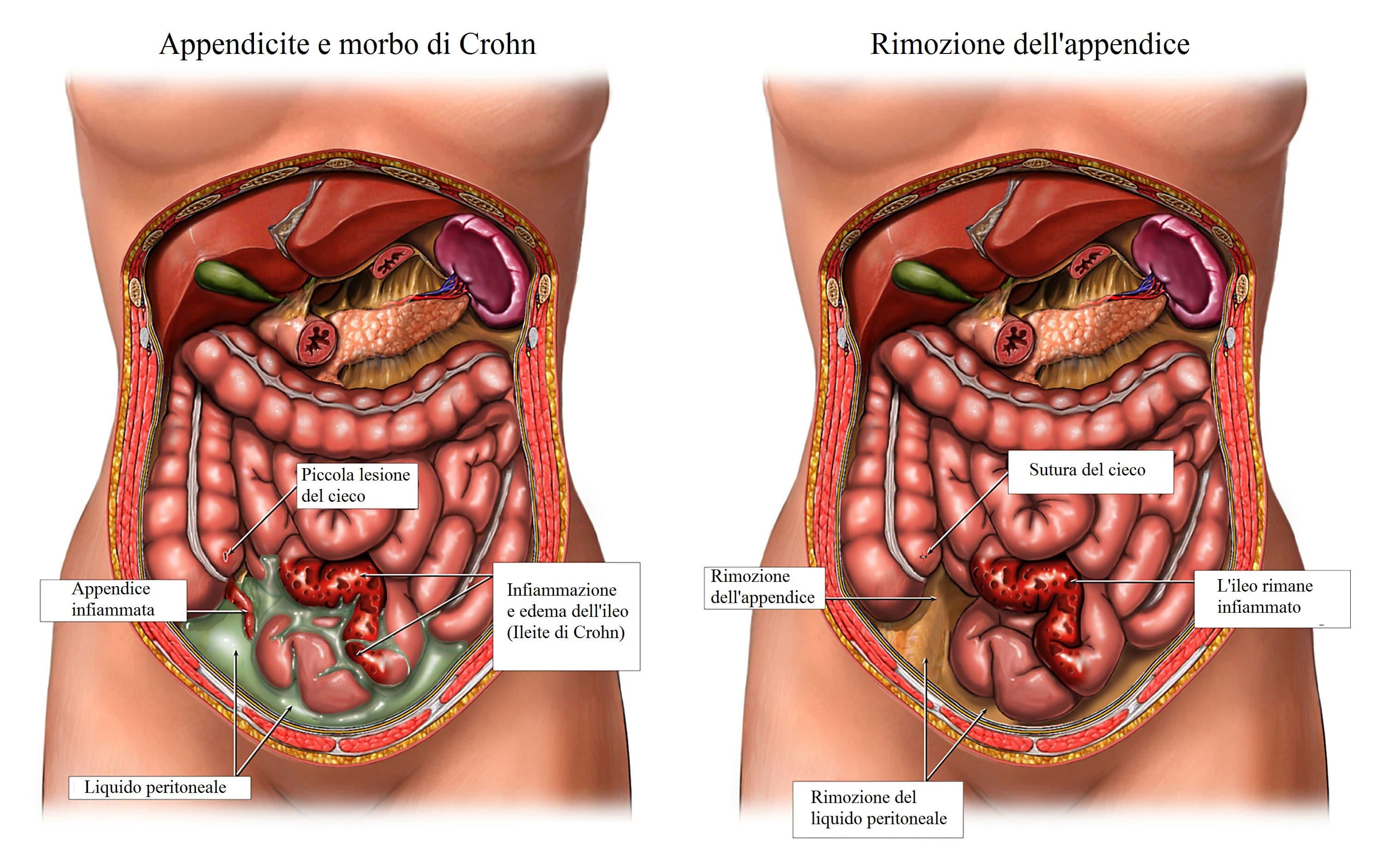 Appendicite,morbo di crohn,intervento chirurgico
