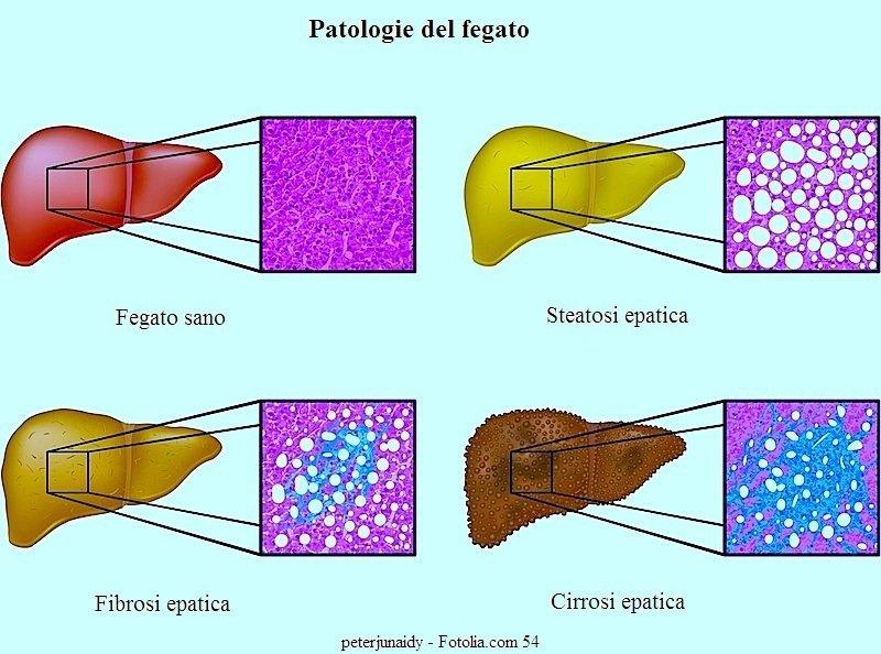 Epatite c sintomi contagio trasmissione del virus - Epatite c periodo finestra ...