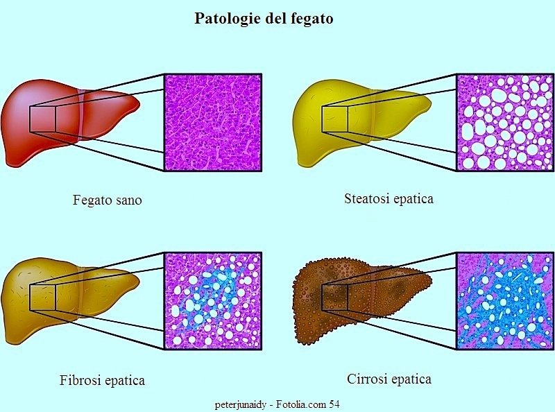 Epatite C,fegato,cirrosi,fibrosi