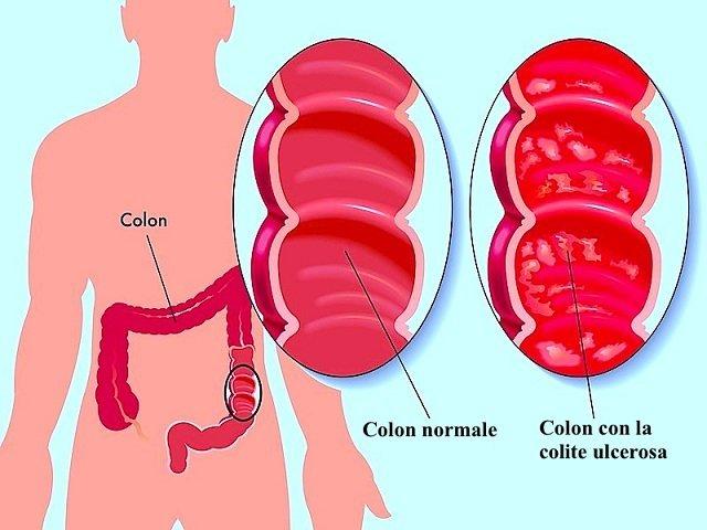 colite ulcerosa,colon,infiammazione,diarrea,stitichezza