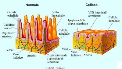Sintomi della celiachia