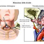 rimozione della tiroide,tiroidectomia