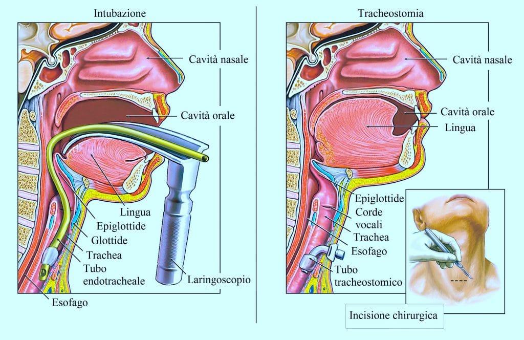 Tracheostomia,intubazione,tumore alla tiroide