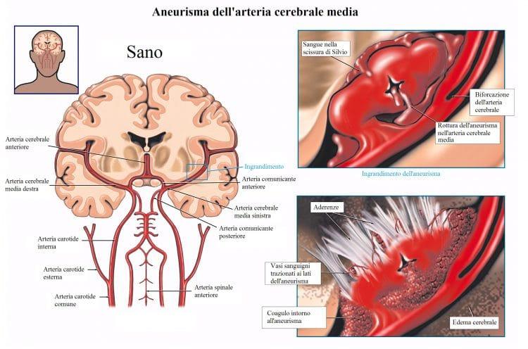 Aneurisma cerebrale,edema,aderenze,mal di testa