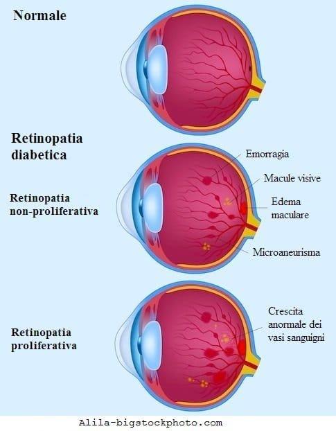 Retinopatia diabetica,neovascolarizzazione,vasi,retina