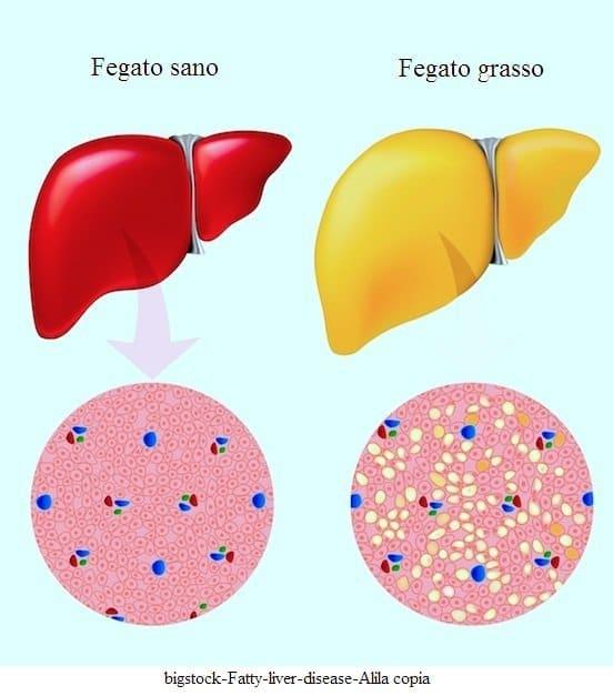 dieta in bianco per fegato