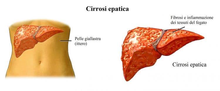 cirrosi epatica,ittero,fegato