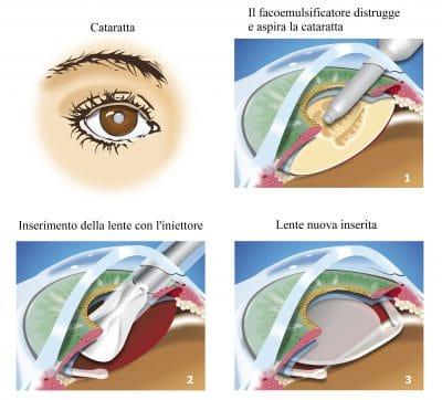 Facoemulsificazione,inserimento lente
