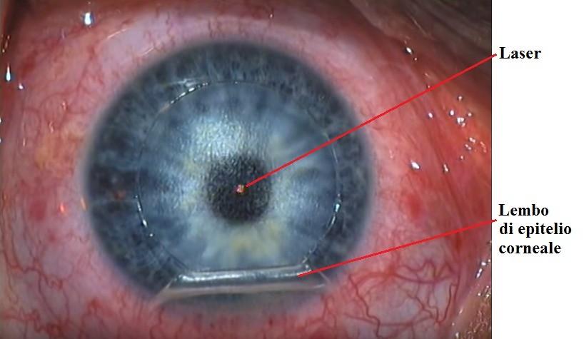 Laser, Lasik, Intervento, occhio