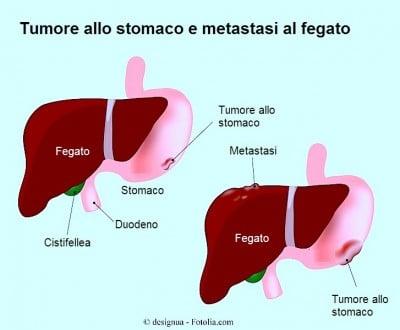Metastasi al fegato