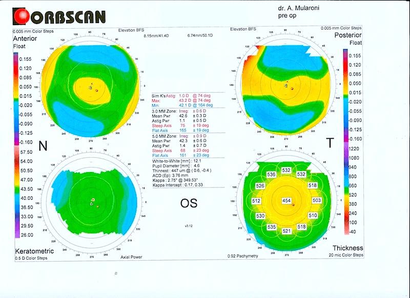 Laser Agli Occhi Operazione Intervento Miopia Costo