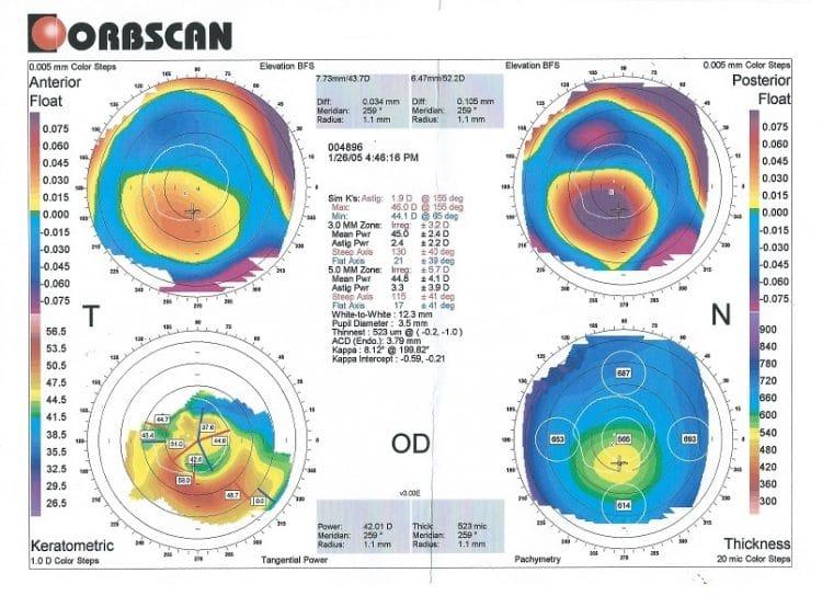 pachimetria corneale,irregolarità,cheratocono