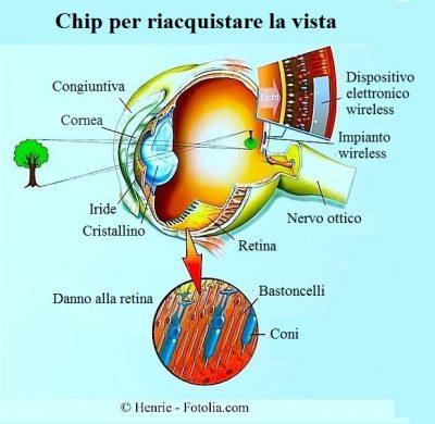 protesi retiniche,dispositivo wireless,impianto,interno,occhio