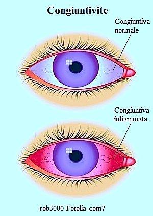congiuntivite virale,batterica,occhi rossi