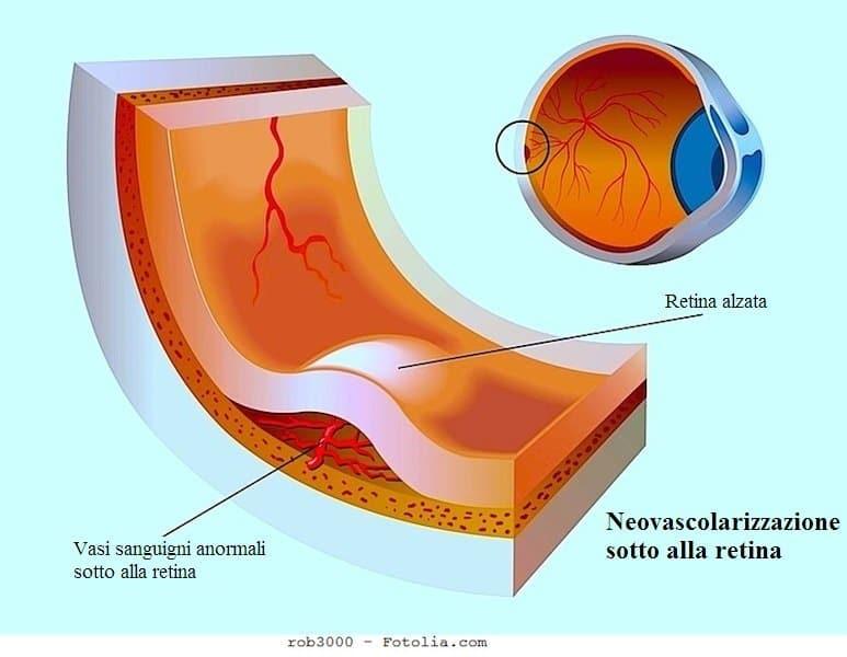 Distacco della retina,neovascolarizzazione