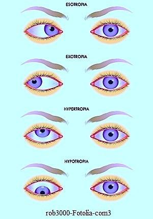 Strabismo degli occhi