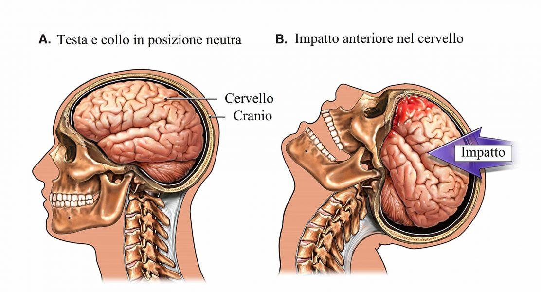 Trauma cranico,emorragia cerebrale,colpo di frusta