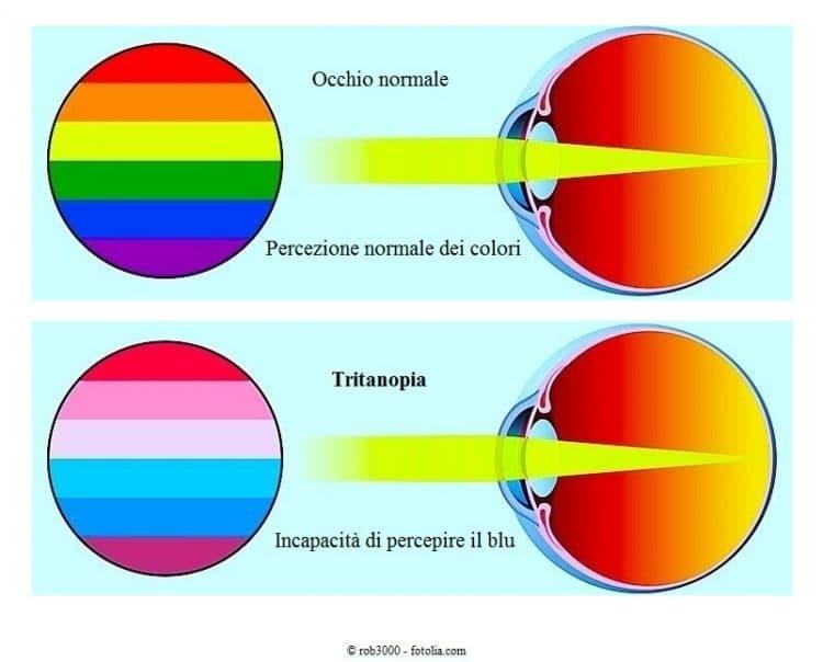 Farbenblinden Brille