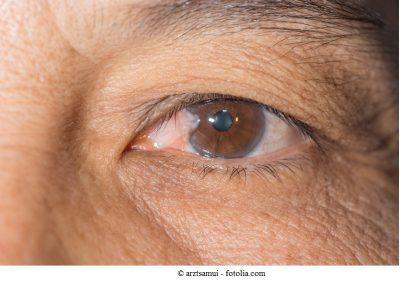 Pterigio,occhio,occhi,perdita della vista